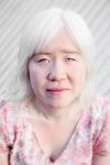 A Lady with albinism